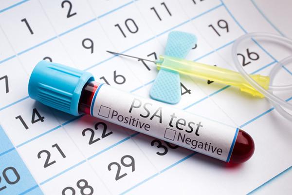 Prostate_PSA_test-1-e1464279643720.jpg